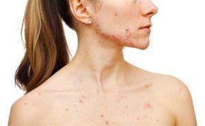 naakte vrouw heeft last van acne