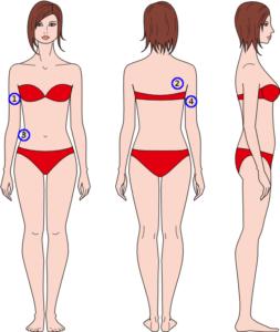 4 punts huidplooimeting bij vrouwen