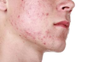 jongeman heeft last van huidaandoeningen op zijn gezicht