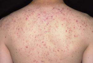 man heeft acne op zijn rug