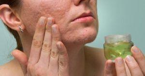 Vrouw doet aloe vera op haar gezicht