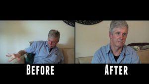 Oudere man met ziekte van Parkinson toont verbetering na gebruik cannabinolen