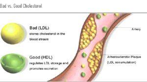 cholesterol verlagen zonder spierpijn