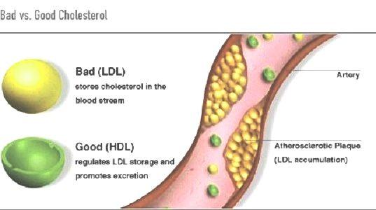Cholestérol LDL et HDL