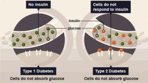 diabète type 1 et 2