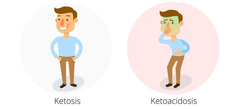 cétose acidocétose