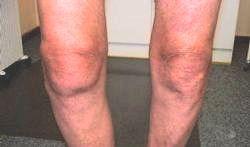 Zichtbare knieartrose bij man