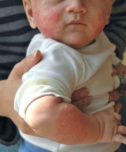 baby heeft zichtbare koemelkallergie op lichaam
