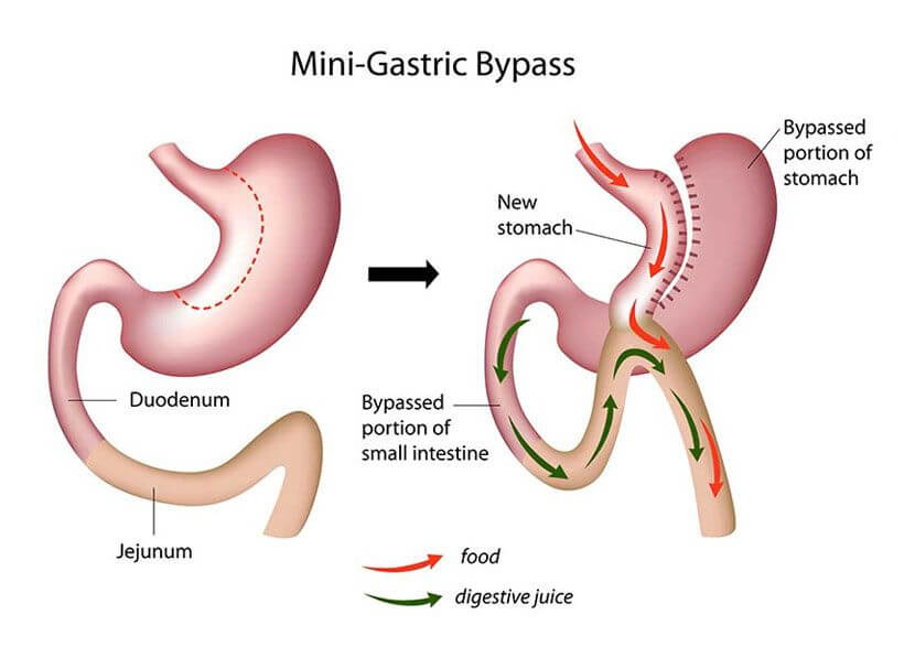 problemen na gastric bypass