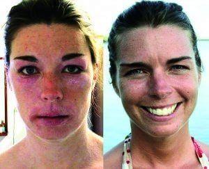 allergie glutamate monosodique
