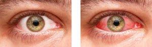 normaal oog vs. rood oog