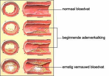 slagaderverkalking