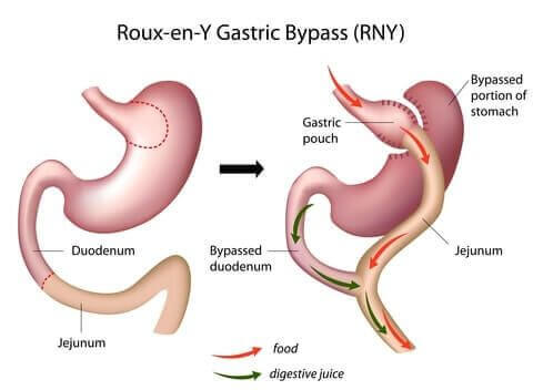 https://happyhealthy.nl/wp-content/uploads/standaard-gastric-bypass.jpg