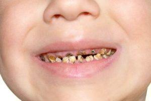 kind met rotte tanden