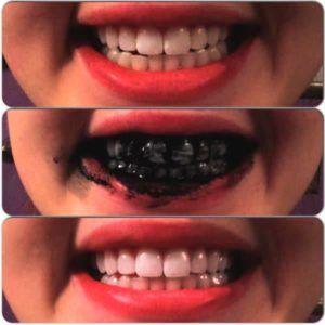 voor en na foto's van een vrouw die actieve kool als tandpasta heeft gebruikt om witte tanden te krijgen