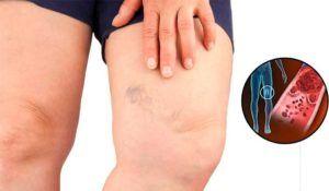 vrouw heeft zichtbare spataderen op been