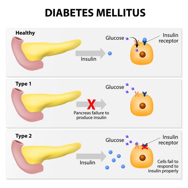 illustratie van insuline en diabetes type 2
